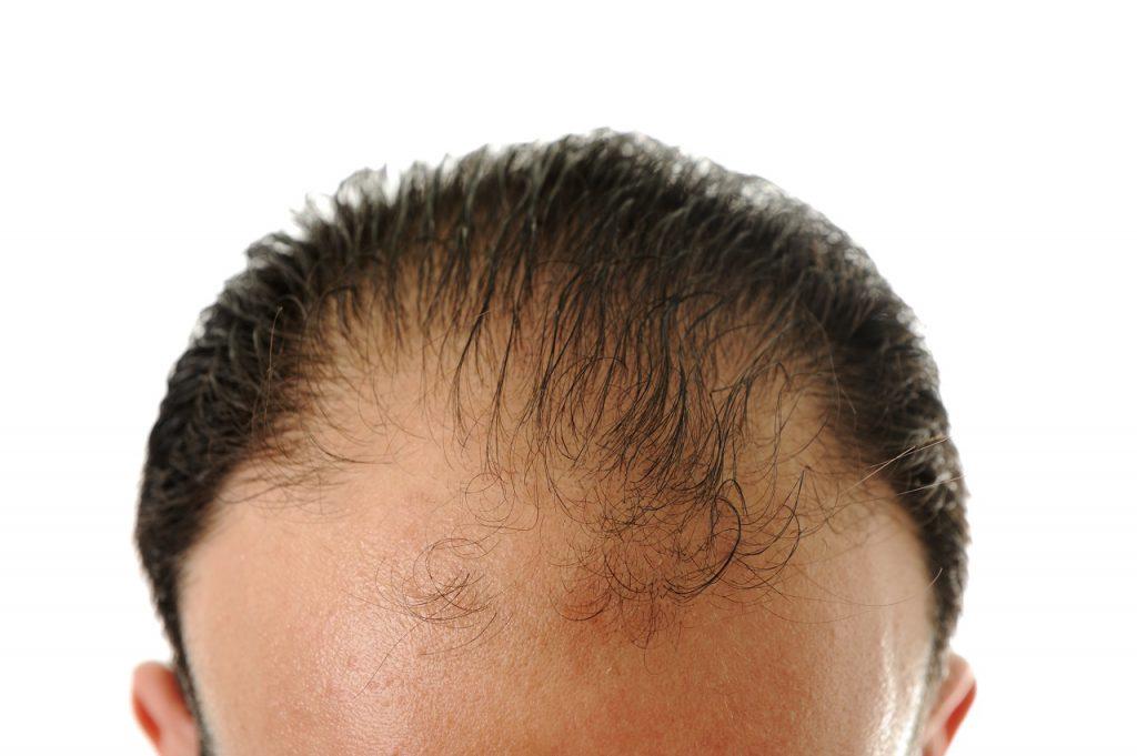 łysienie plackowate przyczyny