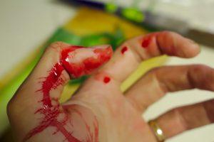 chory na krwawiączkę